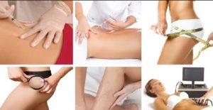 tratamiento de estética corporal